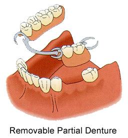 partial denture, partial dentures