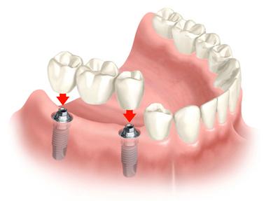 implants, dental implants, mini implants