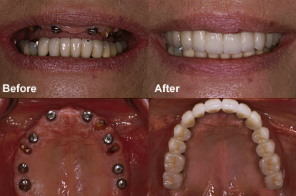 This photo shows before and after picture of min implants, implants, and an implant bridge